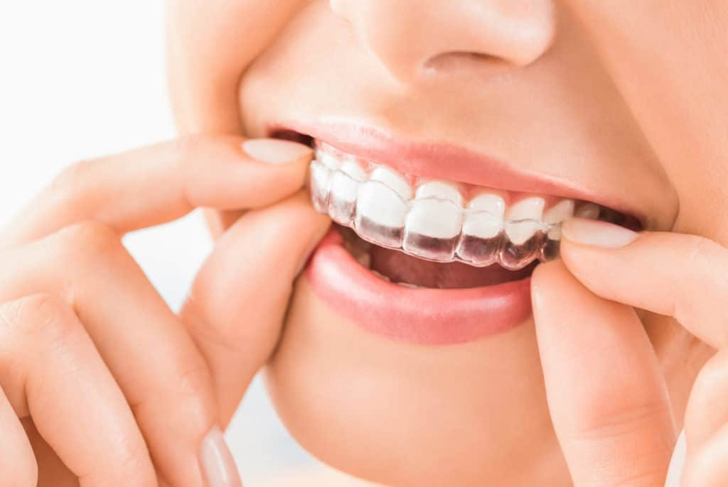 Reasons to Get Invisalign for Adults – Get the Smile You Love